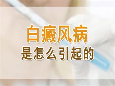 了解成年人患上白癜风的病因,有效预防,远离疾病!