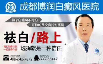 哪个医院主要治疗白癜风