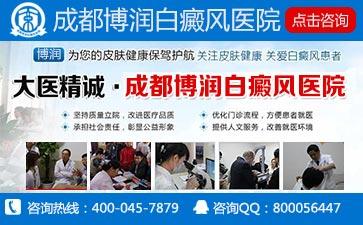 中国较好的白癜风医院