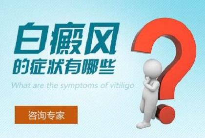 白癜风后期症状有哪些表现呢?